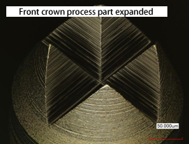Front crown process part expanded